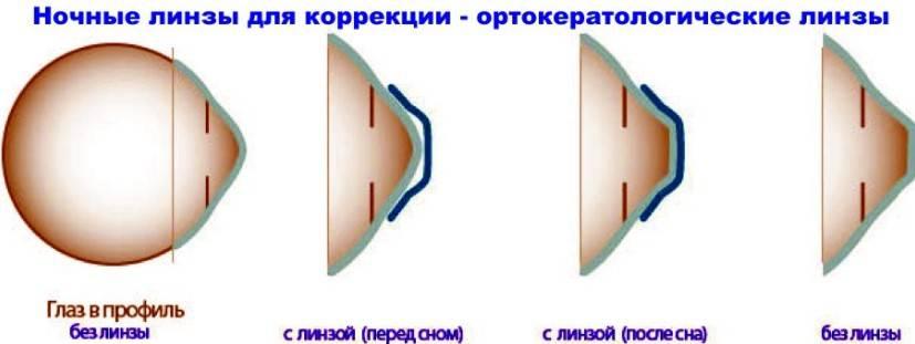 Ортокератология ночные линзы для коррекции зрения, отзывы врачей, улучшения, восстановления, где подобрать