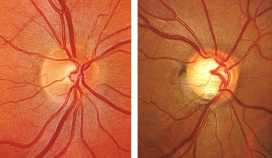 Дистрофия сетчатки глаза: что это такое, причины и лечение