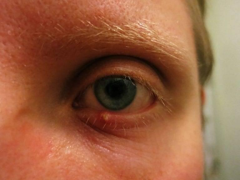 Гной в уголках глаз у взрослого   ocularhelp