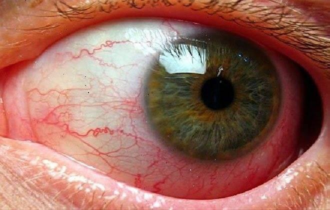 Эписклерит глаза: причины, симптомы, диагностика и лечение