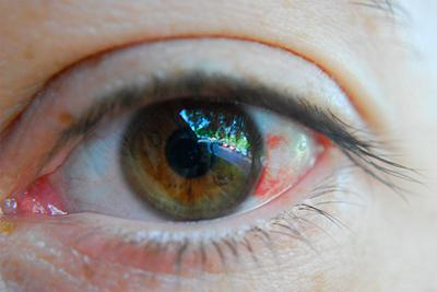 Травмы глаза – лечение и симптомы при кровоизлияниях, ранениях роговицы и других повреждениях
