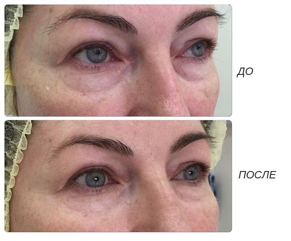 Отеки после уколов гиалуроновой кислоты под глаза – лечение артроза и артрита, лечение подагры