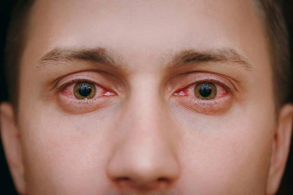 Болят глаза от компьютера: что делать, как лечить (капли, народные средства, гимнастика)