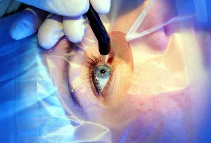 Осложнения и последствия после лазерной коррекции зрения