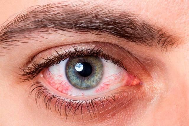 Разрыв глазного яблока - причины, диагностика и лечение