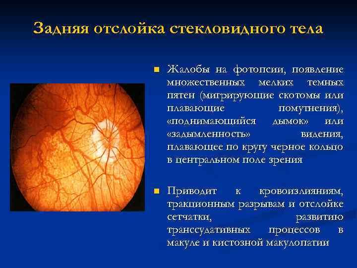 Отслойка стекловидного тела глаза – причины, симптомы и лечение