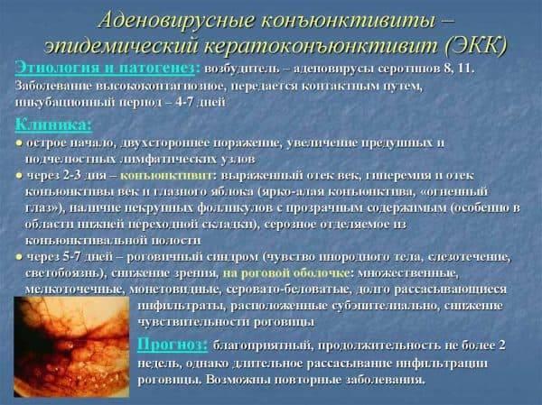 Кератоконъюнктивит: лечение, симптомы, причины и кератоконъюнктивит у собак и кошек