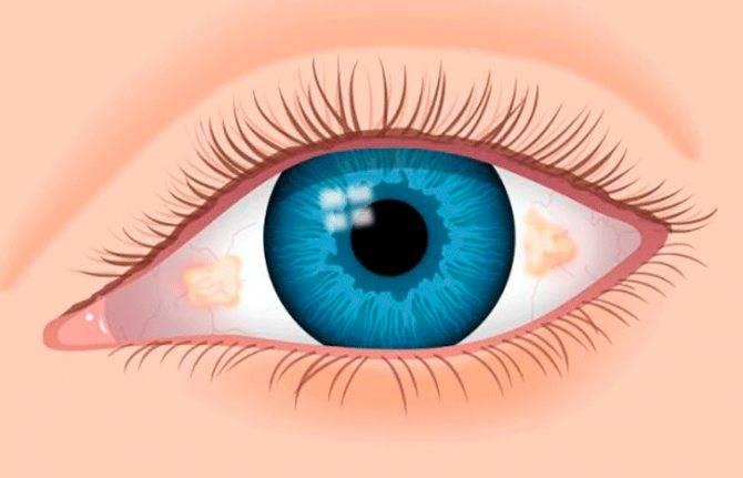 Ирит глаза симптомы – лечение артроза и артрита, лечение подагры