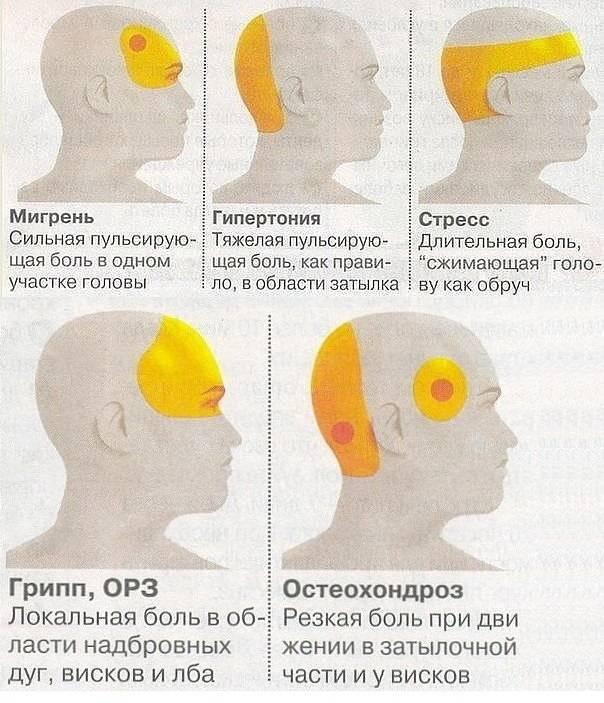 Причина головной боли при движении глаз