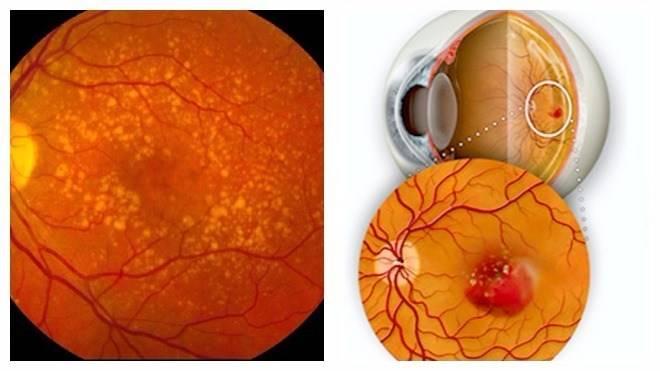 Возрастная макулодистрофия - влажная форма заболевания глаза, современные способы лечения, причины и прогноз сохранения зрения