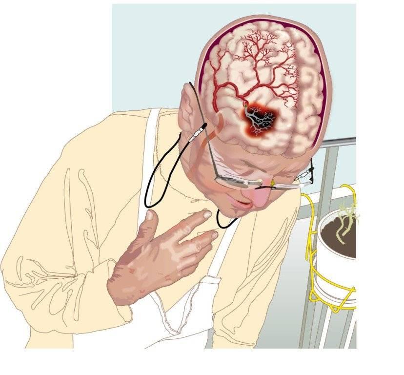Инсульт глаза — причины и признаки заболевания, диагностика, методы лечения, возможные осложнения