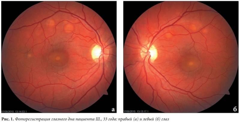 """Осмотр глазного дна (офтальмоскопия) - """"здоровое око"""""""