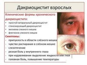 Дакриоцистит: причины, симптомы, лечение у детей и новорожденных (капли, массаж, народные средства), виды, первые признаки, диагностика, осложнения