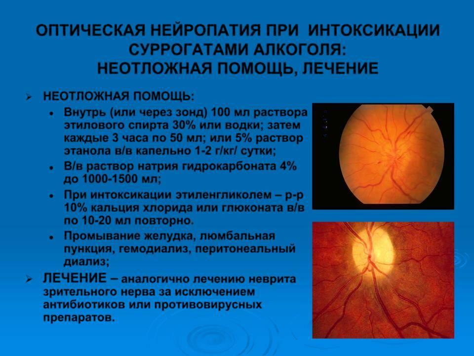 Атрофия зрительного нерва:  признаки, диагностика и лечение — глаза эксперт