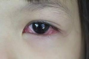 Почему воспалился глаз у ребенка и как можно быстро вылечить малыша