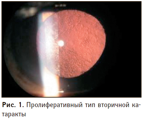 Помутнение хрусталика глаза: причины и лечение oculistic.ru