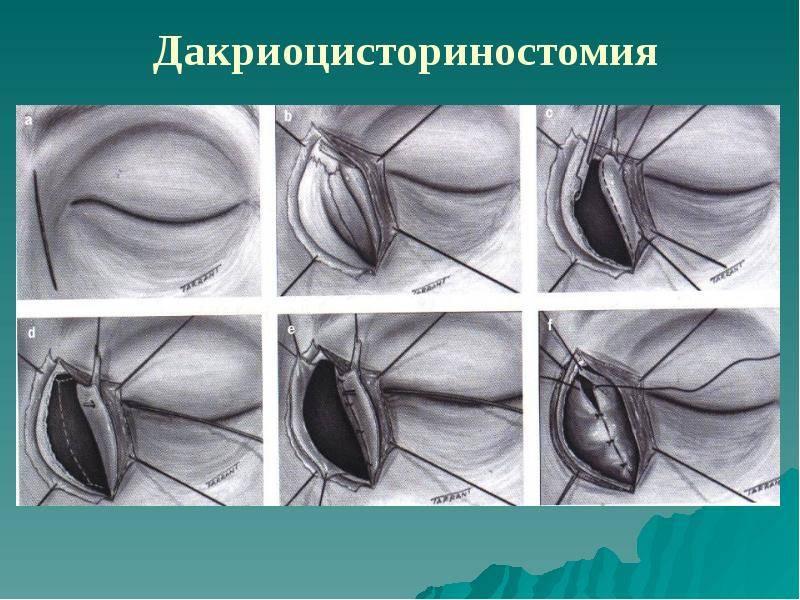 Дакриоцисториностомия: что это за операция, методы проведения лазером и эндоскопическая - здоровье