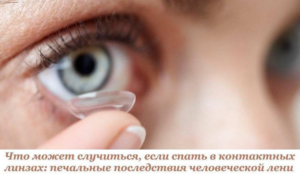 Что будет, если спать в линзах днем и не снимать их на ночь, какие будут последствия для глаз