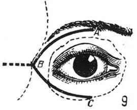 При каких заболеваниях отмечается глубокая инъекция (покраснение) глазного яблока? как она еще называется?