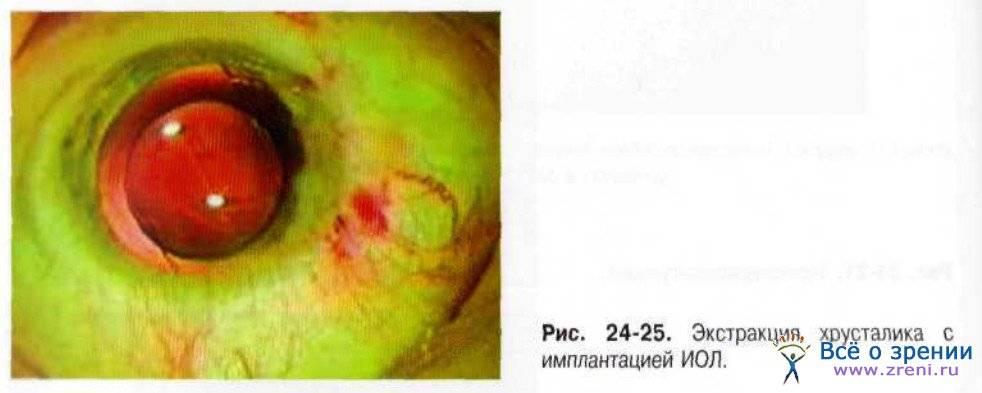 После лазерной коррекции зрения один глаз видит хуже другого: почему так плохо, что делать, если изображение мутное
