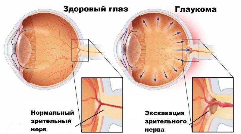 Норма и перепады глазного давления у людей разного возраста