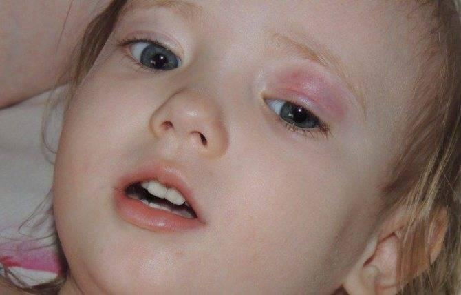 Воспаление глаза у ребенка — что делать?