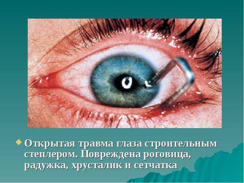 Такие повреждения чреваты потерей зрения! виды травм роговицы глаза