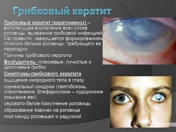 Кератит что это за болезнь. что нужно знать о кератите