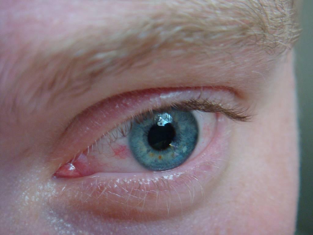 Что означает появление пленки на глазах? | анатомия чем опасна пленка на глазах? | анатомия