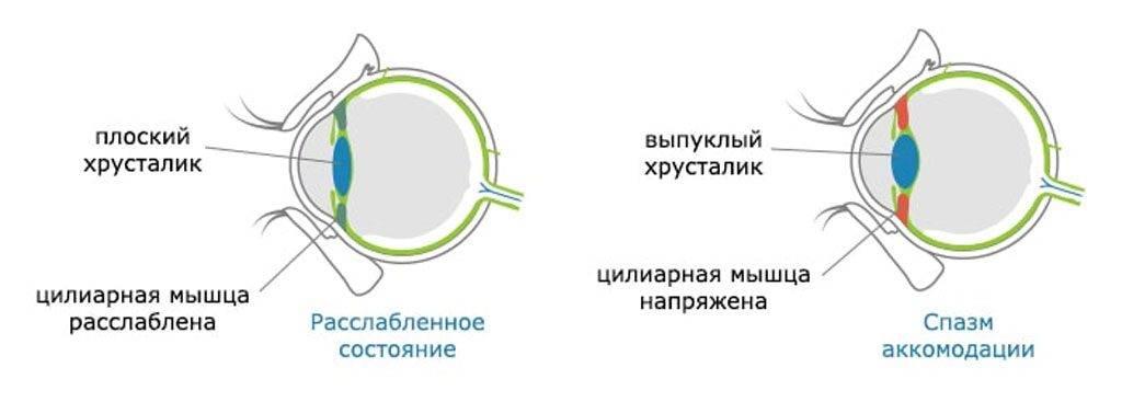 Аккомодация глаза что это за болезнь. что нужно знать об  аккомодации глаза