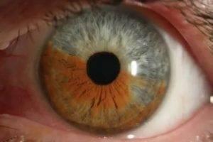 Увеит глаза: причины, симптомы и лечение