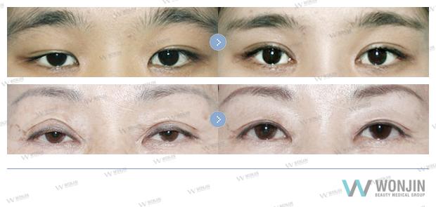 Асимметрия лица: причины, как исправить + методы лечения