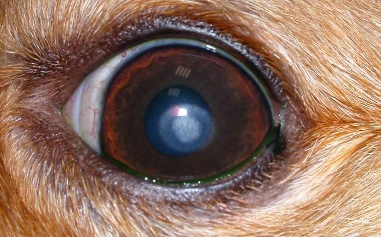 Дистрофия роговицы глаза - что это такое, профилактика и лечение, признаки дистрофии роговицы глаза | медицинский портал spacehealth