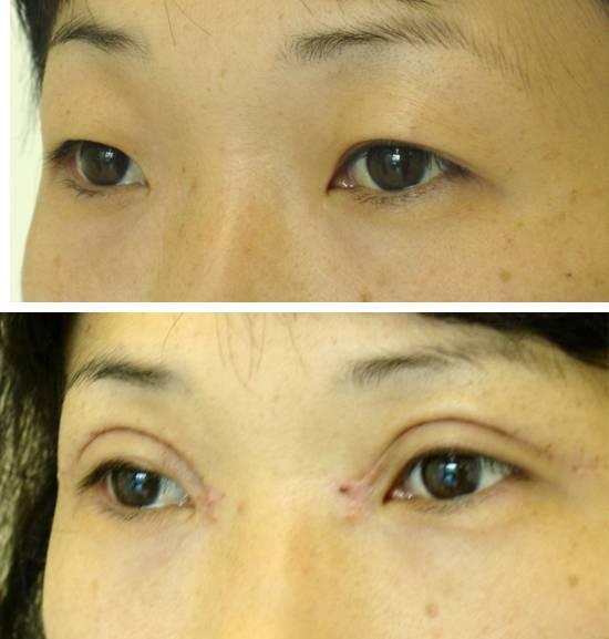 Блефаропластика азиатских глаз, европеизация век, фото до и после