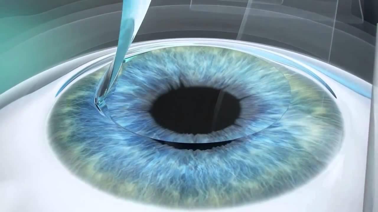 Отличия методов лазерной коррекции зрения ласик (lasik), суперласик (superlasik) и фемтоласик (femtolasik)