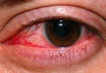 Симптомы и лечение герпеса на глазах — подробное описание офтальмогерпеса
