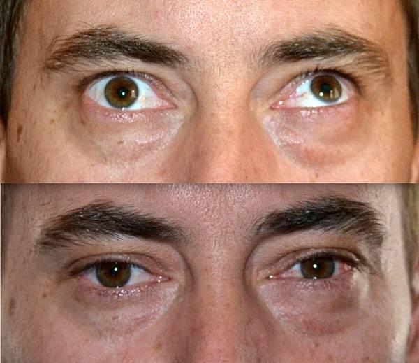Что делать, если глаза смотрят в разные стороны: фото симптомов, причины, почему косят глаза, лечение болезни
