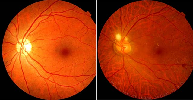 Макулярный отек сетчатки глаза: лечение, типы и профилактика