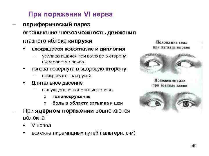 Почему глаза бегают туда-сюда? вестибулярный нистагм и оптокинетический: что это такое