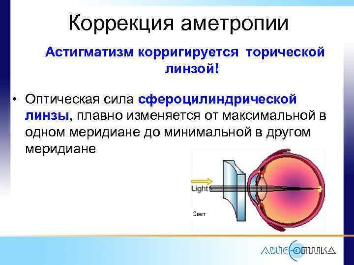 Астигматические контактные линзы: отзывы, цены, можно ли носить обычные линзы при астигматизме