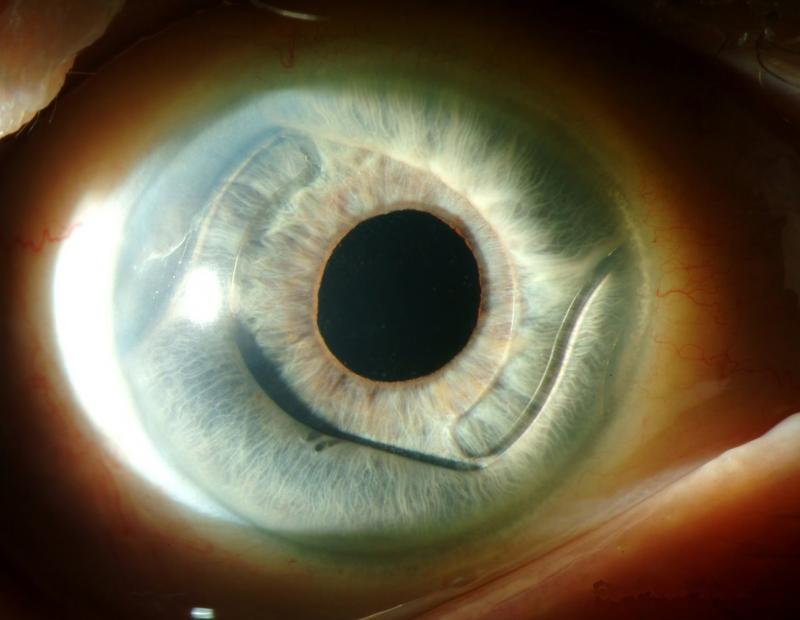 Подбор мягких контактных линз для глаз по параметрам