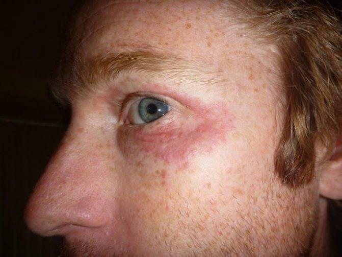 Синяки и мешки под глазами у мужчин: причины и лечение тёмных кругов и отёков, почему появляются, как избавиться, отзывы