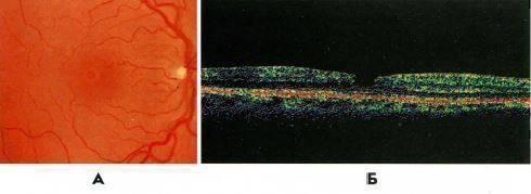 Симптомы и лечение макулярного разрыва сетчатки