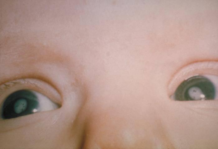 """Катаракта у детей: причины возникновения, симптомы, лечение (операция)   - moscoweyes.ru - сайт офтальмологического центра """"мгк-диагностик"""""""