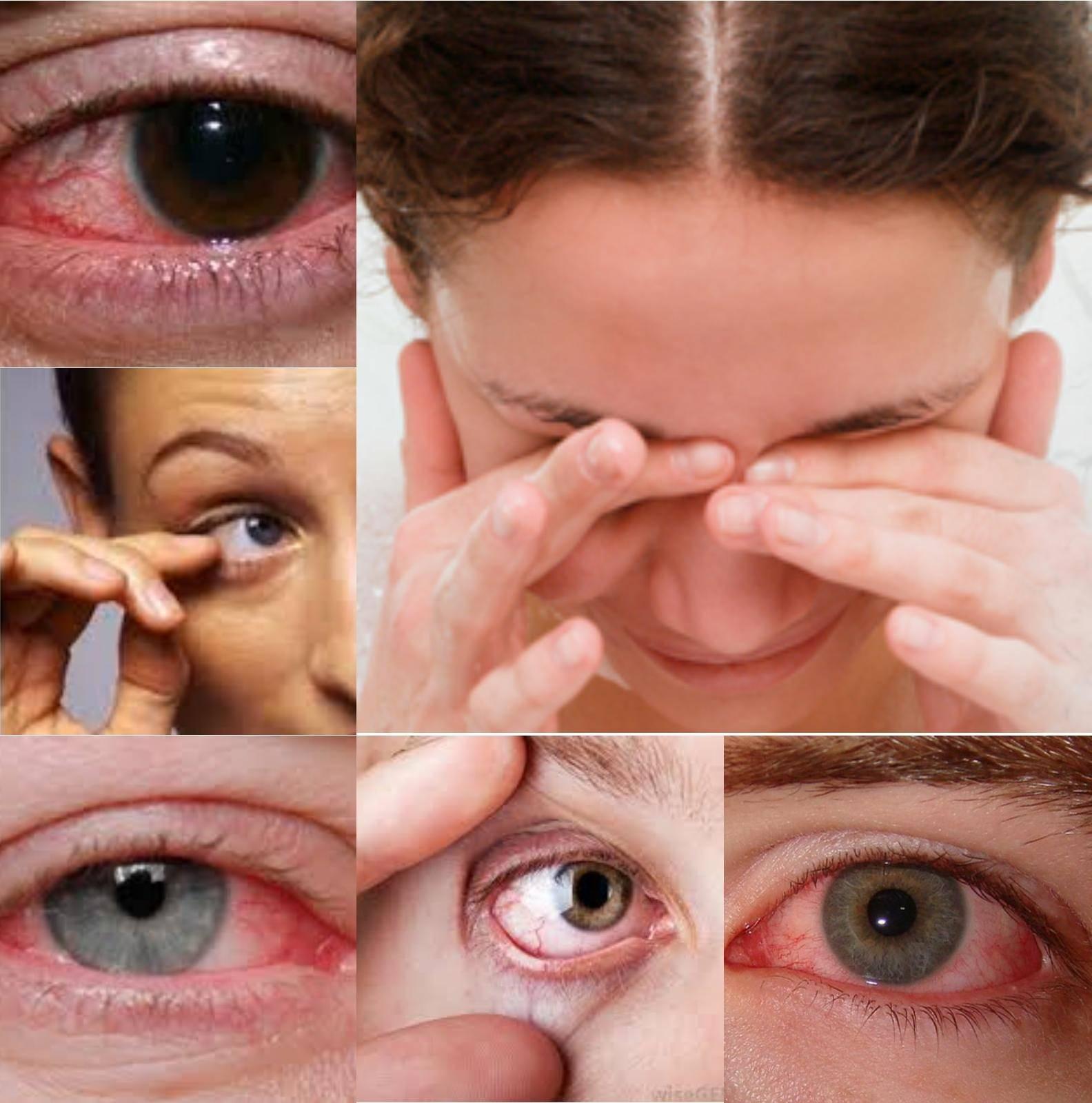 Почему появляются искры в глазах? причины и способы лечения симптома