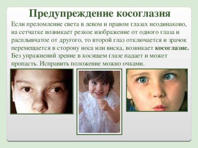 Скрытое косоглазие: мнимая гетерофория у детей и взрослых, лечение патологии