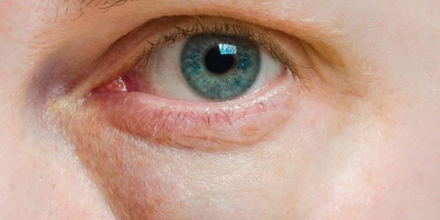 От чего у человека блестят глаза. почему блестят глаза. блеск глаз и заболевания