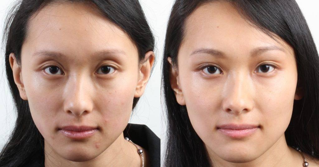 Как сделать глаза молодыми и эффектными: все о кантопластике