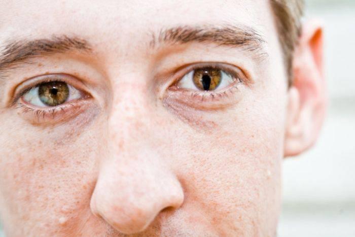 Особенности поликории — как видят люди с двойным зрачком