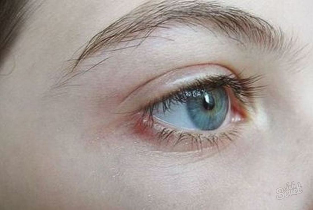 Научное название и разновидности ячменя на глазу